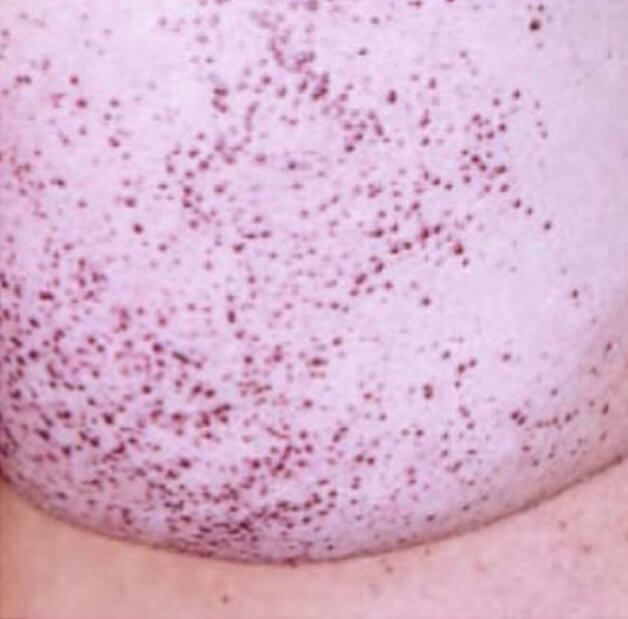 Fabry disease diagnosis - Typical angiokeratoma on the skin
