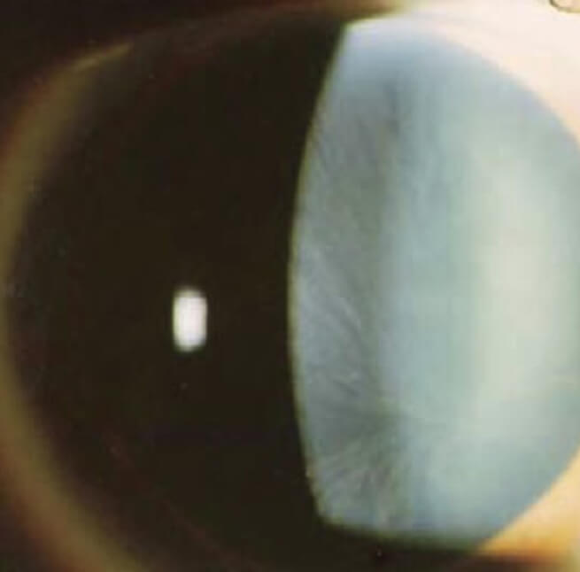 Fabry disease diagnosis - Cornea verticillata in a patient