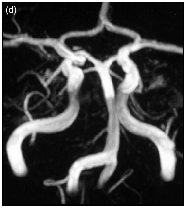 Fabry disease neurological symptoms: Magnetic resonance imaging - Dilation of the carotid arteries
